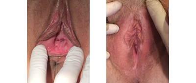 Perineoplasty Before and After