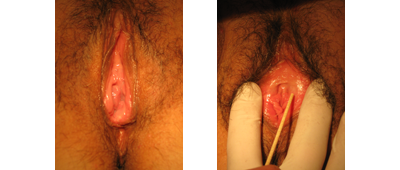 Before and after surgery
