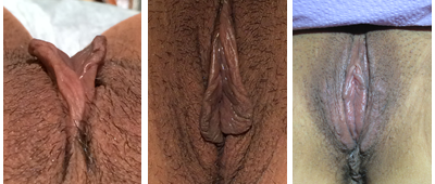 Pre- and post-op labiaplasty minora and majora + hood