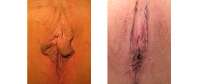 Pre- and 1 month post-op labiaplasty, hood reduction, V-Y wedge