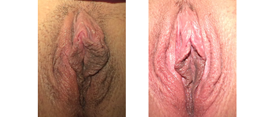 Left-sided V-Y labiaplasty + hood. Patient wanted left side to match right; did not want anything else done