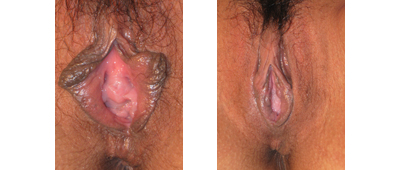 Before and After Perineoplasty