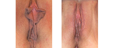 Before and After Labiaplasty