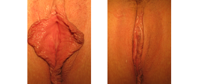 Labiaplasty Results