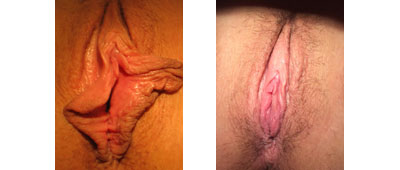 Labiaplasty Surgery