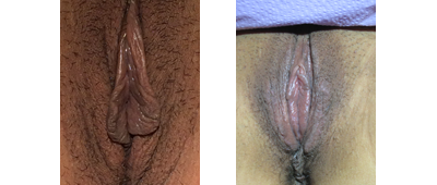 "Before and 4 weeks after ""Vaginal Rejuvenation"" with LP minora and majora"