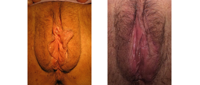 Before and 6 weeks after Vaginal Rejuvenation, LP minors & majora