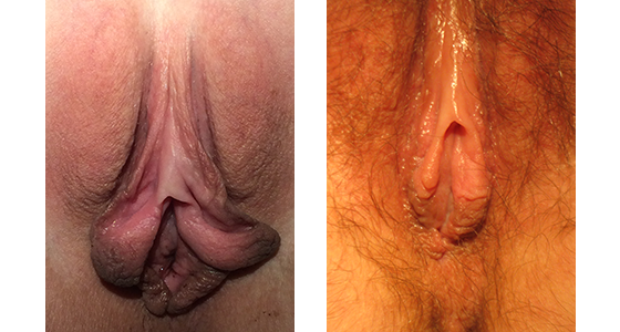 Labiaplasty Before & After 03.17_002