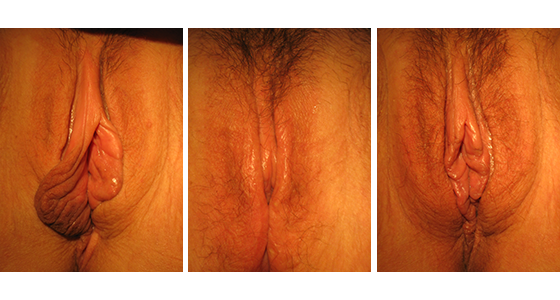 Labiaplasty Before & After 03.17_003