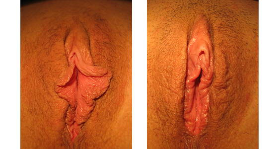 Labiaplasty Before & After 03.17_005