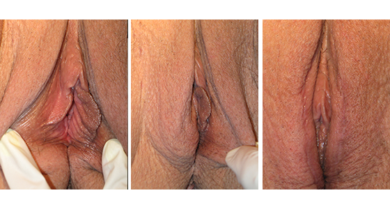 Labiaplasty Before & After 03.17_006