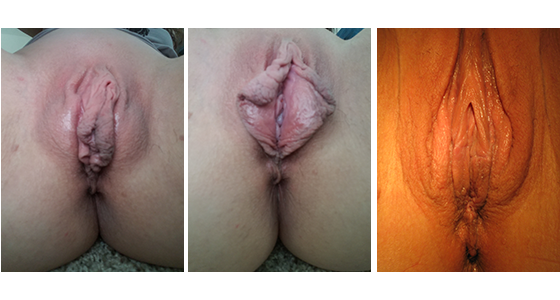 Labiaplasty Before & After 03.17_007