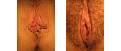 Labiaplasty Surgery results