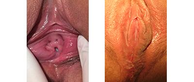 Perineoplasty