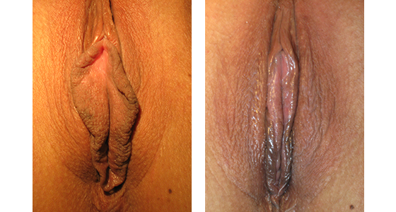 labiaplasty_results