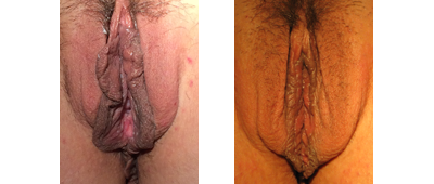 Before and After Vaginoplasty