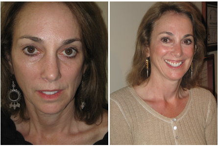 Dr. Yily Before and After