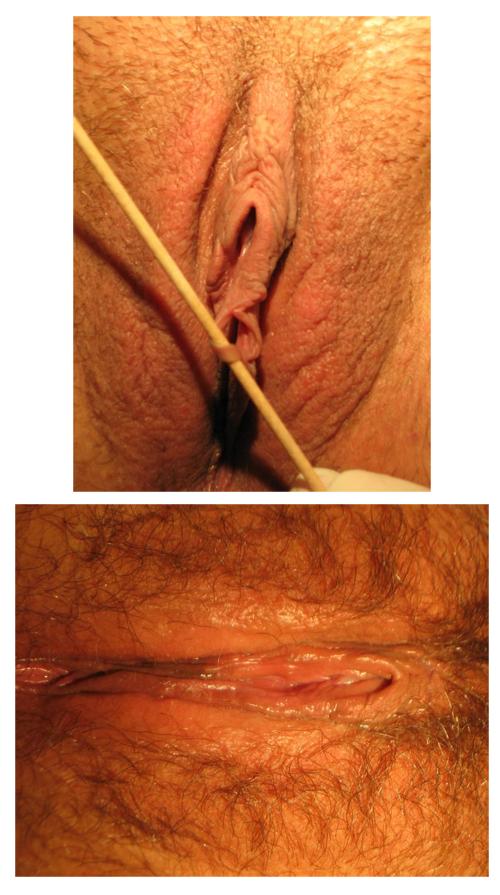 Fistulas in V-wedge labiaplasty