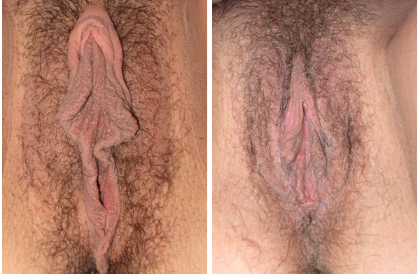 "You can see that a simple linear resection would never work here. This 18 year-old college student wished to not be too small, to be as natural looking as possible, and to decompress both the fluffy hood and lower labia. A double-winged Y modification of V-wedge was designed for her to ""curtain"" the vagina, and to make her labia smaller, but to comply with her wishes for ""…not too much off!"""