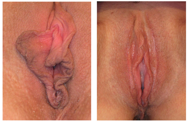 I chose a Y modification of a V-wedge here as the best way to modify her quite large prepuce folds. The prominent posterior commissure at the bottom was modified by a separate U-shaped incision below her labial re-anastamosis. (This patient also had a labiaplasty of her outer labia majora…)
