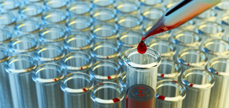 The O-Shot® and Other Uses of PRP (Platelet-Rich Plasma)