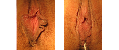 Linear labiaplasty