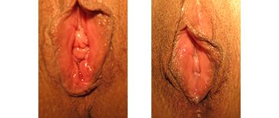 Perineoplasty | Vaginoplasty