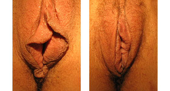 The Real Cost Of Vaginal Rejuvenation