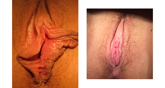 vaginal rejuvenation before and after 03.17_002
