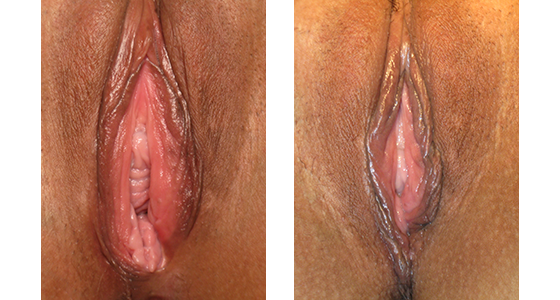 vaginal rejuvenation before and after 03.17_003