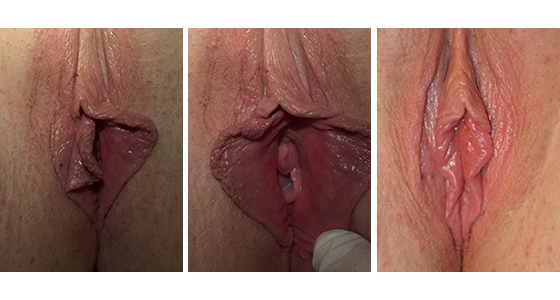 vaginal rejuvenation before and after 03.17_004