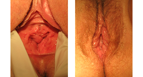 vaginal rejuvenation before and after 03.17_005