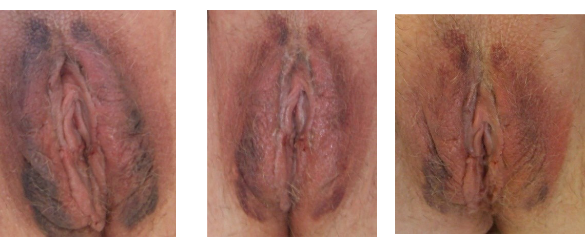 Labiaplasty Recovery Photos