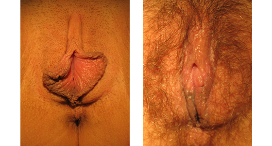 Labiaplasty-results