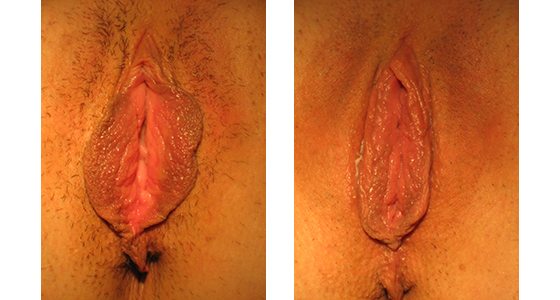 Vaginal Rejuvenation Results