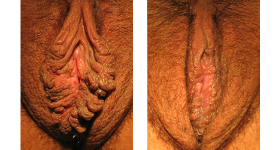 Labiaplasty Revision Before and After