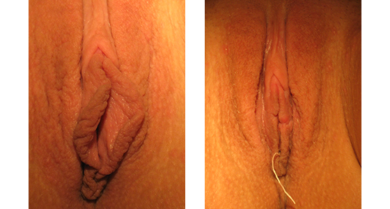 Labiaplasty_results_08-001
