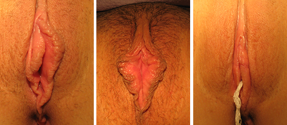 labiaplasty_results_08-001-1
