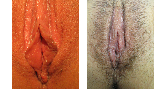 labiaplasty_results_08-002-1
