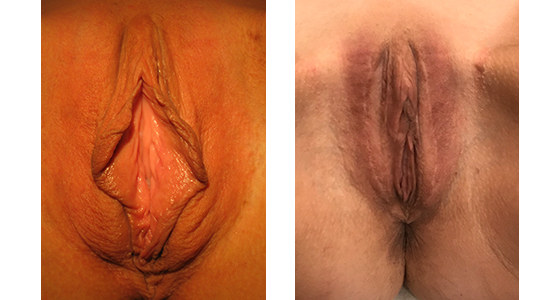 labiaplasty_results_08-003-1