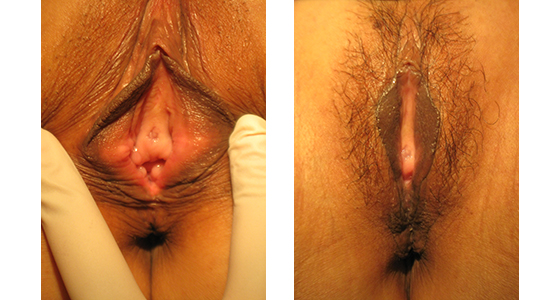 vaginoplasty_results_08-001