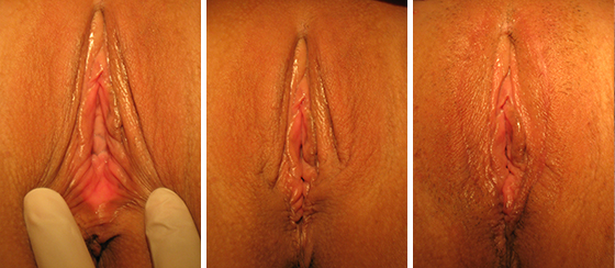vaginoplasty_results_08-002