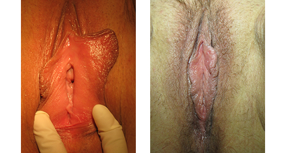 vaginoplasty_results_08-003