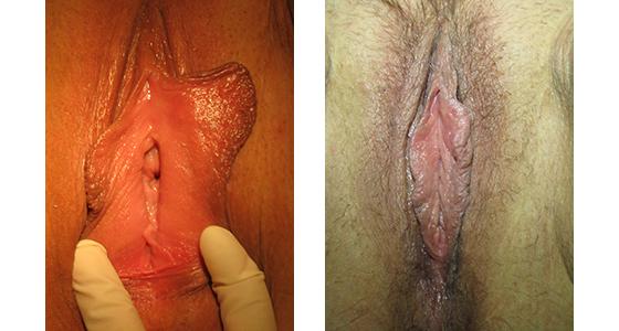 vaginoplasty_results_08-003
