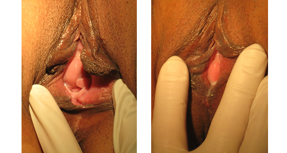Before and After Perineoplasty and Vaginoplasty