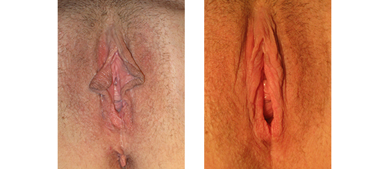 Linear labiaplasty 2 months post-op