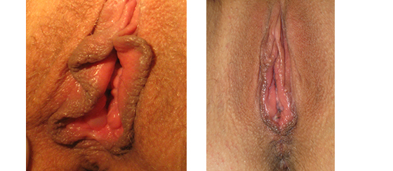 Vaginal reconstruction before & 6 wks post-op linear LP, VP, PP