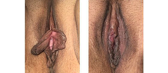 Linear labiaplasty, 6 weeks after