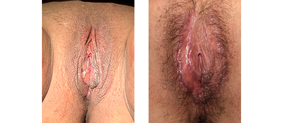 50 year old before and 1 month after labiaplasty, minora and majora